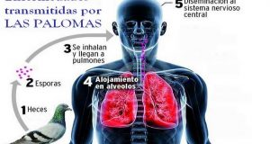 enfermedades transmitidas por las palomas